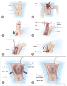 steps-of-penile-skin-inversion-vaginoplasty-used-with-permission-of-xochitl-vinaja